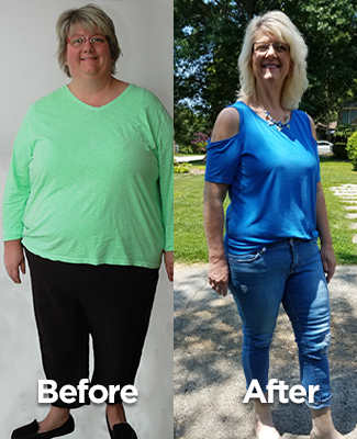 Bariatric Patient Success Story