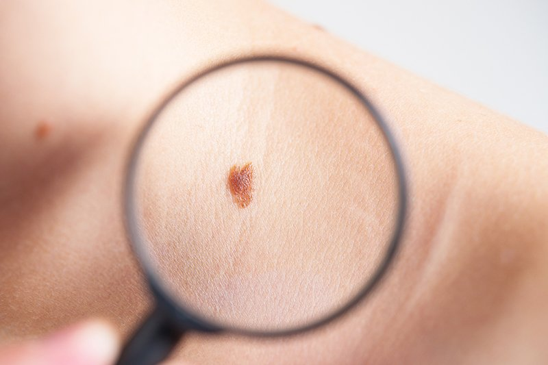 Signs of Skin Cancer and Prevention For Adults and Kids