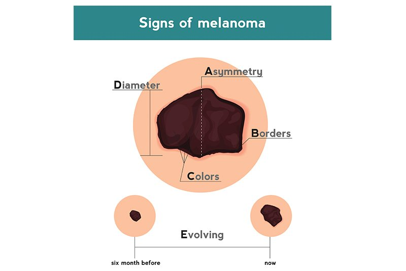 Abcde Of Skin Cancer Cone Health