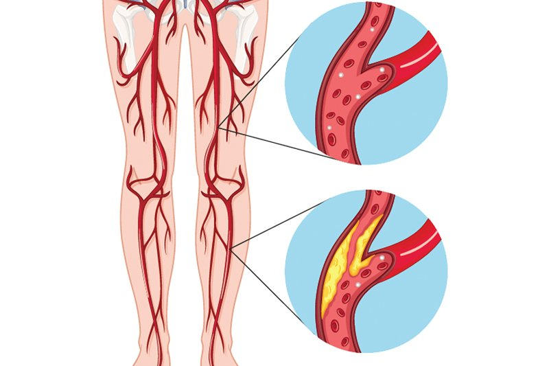 Left Untreated Peripheral Arterial Disease Can Result In Major
