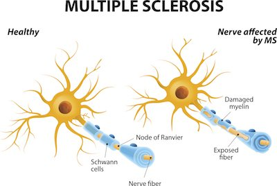 Multiple Sclerosis explained